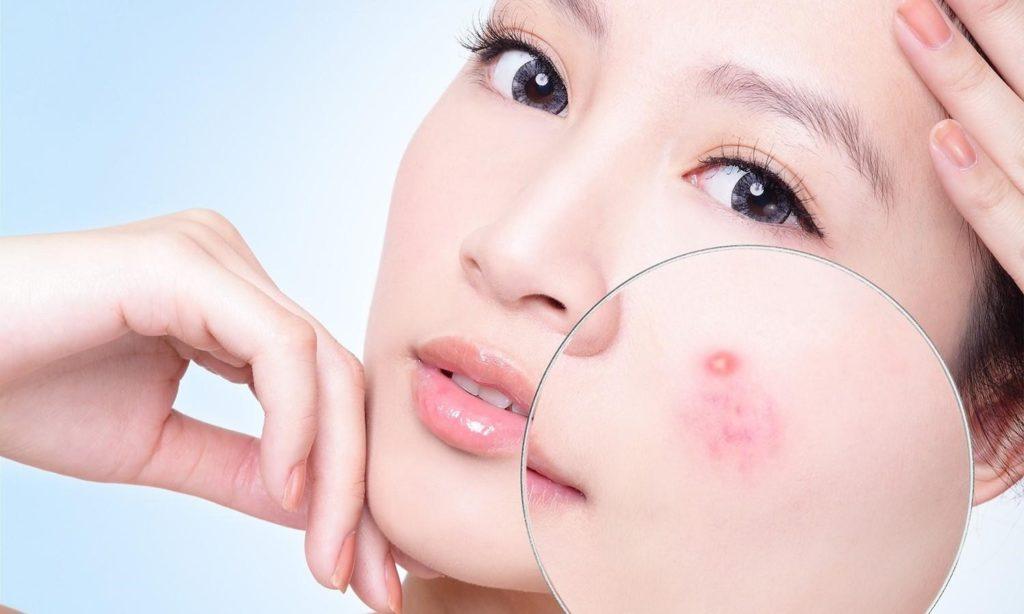 Các bạn gái bị mụn nên chú trọng đầu tư vào bước làm sạch da, bởi đây là khâu quyết định cho cả quá trình chăm sóc da mụn.