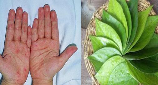 Từ lâu, lá trầu không đã được nhiều người tận dụng để điều trị bệnh viêm da cơ địa. Theo các thầy thuốc đông y, nguyên liệu này có vị cay nồng, tính ấm có khả năng sát trùng, trừ phong, kháng khuẩn…