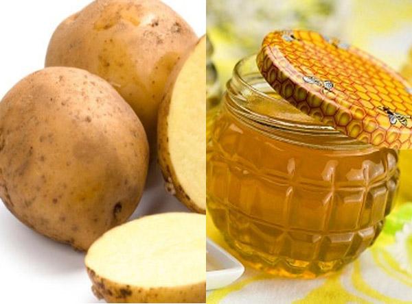Bạn có thể triệt lông vùng kín bằng 2 củ khoai tây nghiền chín và 2 thìa mật ong