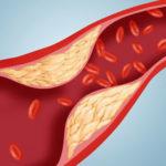 10 cách tẩy sạch mạch máu, ngừa đột quỵ nổi tiếng của Đông y