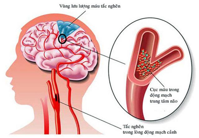 Bệnh thiếu máu não gây nguy hiểm cho người bệnh