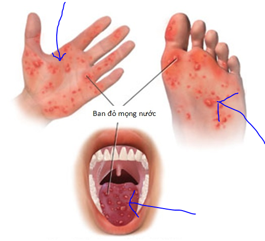 Những phỏng nước xuất hiện ở tay chân miệng