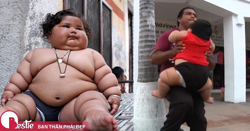 Hội chứng Prader willi gây ra béo phì ở trẻ em