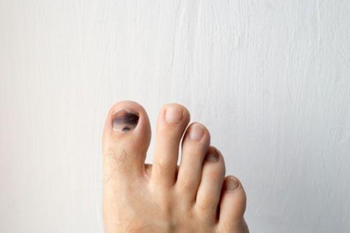 Tình trạng Móng chân xấu xí