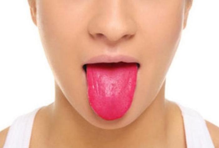Dâu hiệu thiếu vitamin ở lưỡi bạn nên biết