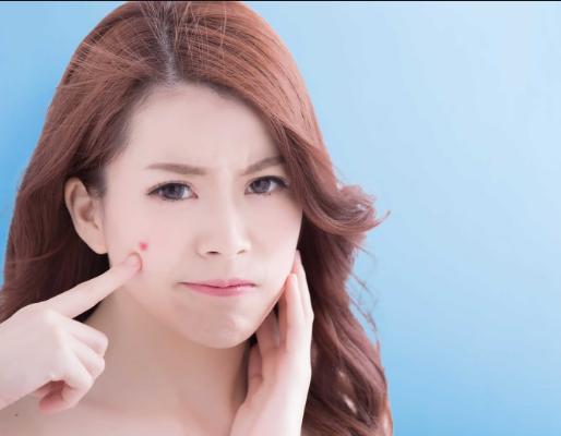 Tình trạng da của bạn và loại mụn là gì