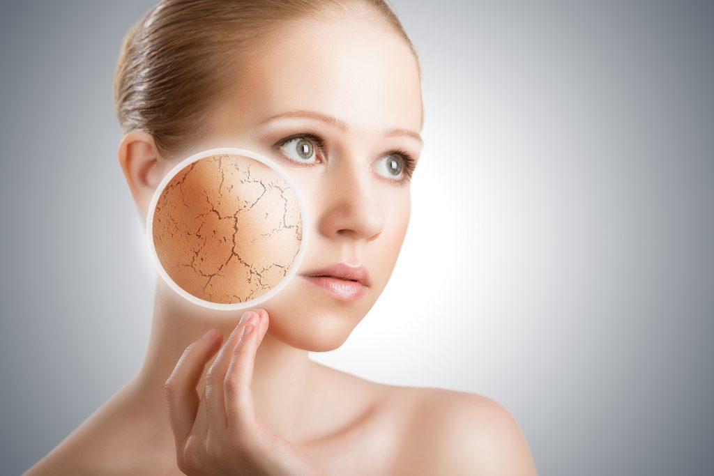 Da bị khô do thời tiết hanh khô mùa đông nên thực hiện cách dưỡng da như thế nào?