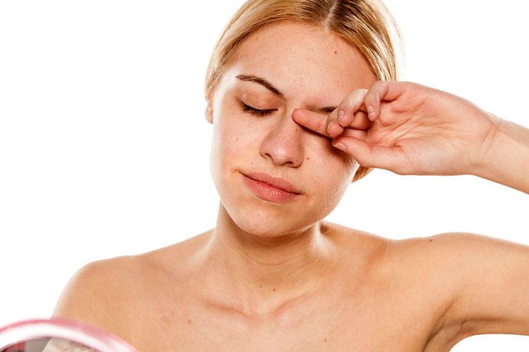 Đá giúp giảm mắt sưng và mệt mỏi