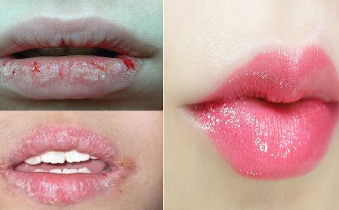 đôi môi khô nẻ