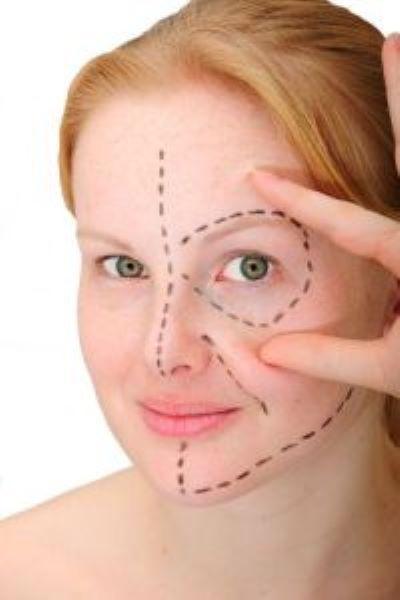 plastic surgery woman