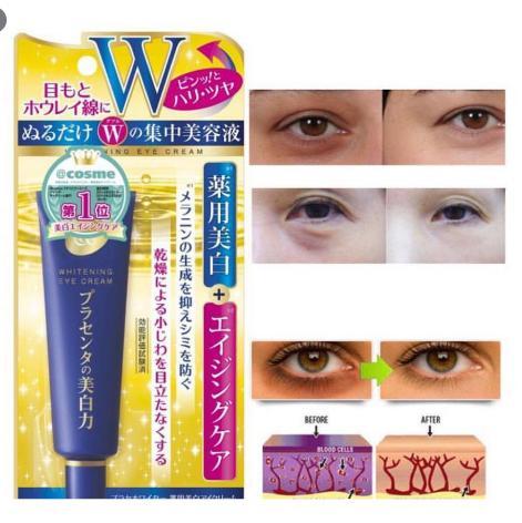 Kem trị thâm quầng mắt nào hiệu quả nhất