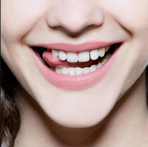 Nước súc miệng trắng răng